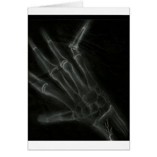 Cartão Raio X quebrado da mão