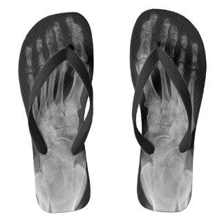 Chinelos Os pés de esqueleto da anatomia do raio X