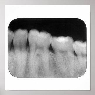 Dentes com enchimento poster