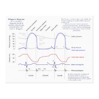 Diagrama de Wiggers Impressão Em Tela