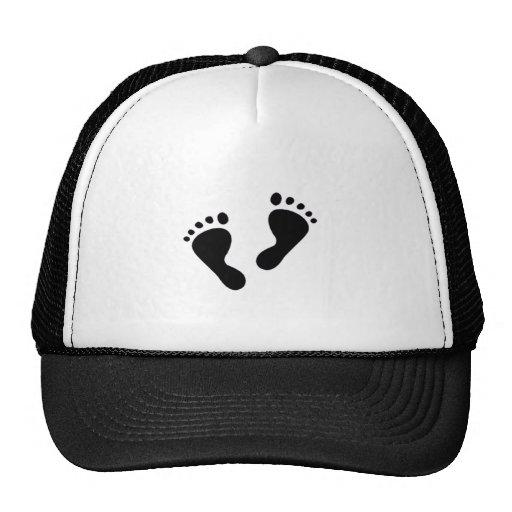 É um bebê - pés do bebê bone