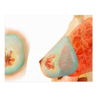 Ilustração médica do peito fêmea cartao postal