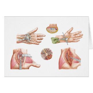 Ilustração médica que mostra o túnel do Carpal Cartões
