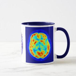 Imagem do cérebro caneca