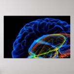 Imagem do raio X do cérebro Impressão