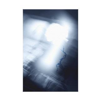 Impressão Em Tela Escuridão do rastejamento