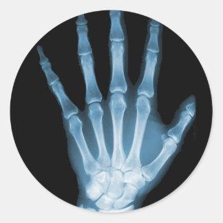 Mão azul do esqueleto do raio X Adesivo