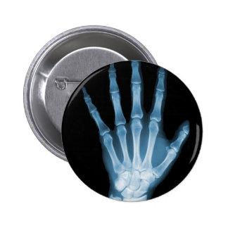 Mão azul do esqueleto do raio X Botons