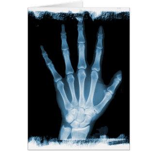 Mão azul do esqueleto do raio X Cartão