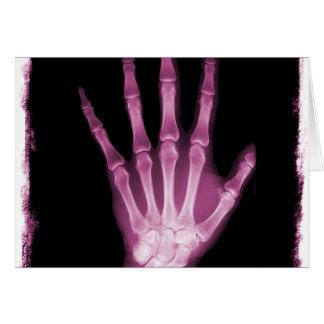 Mão cor-de-rosa do esqueleto do raio X Cartões