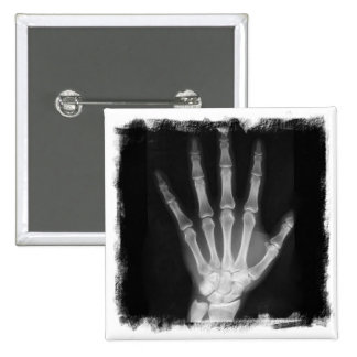 Mão do esqueleto do raio X de B&W Pins