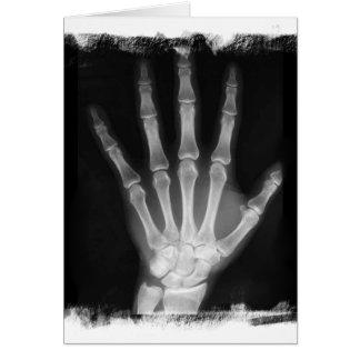 Mão do esqueleto do raio X de B&W Cartões
