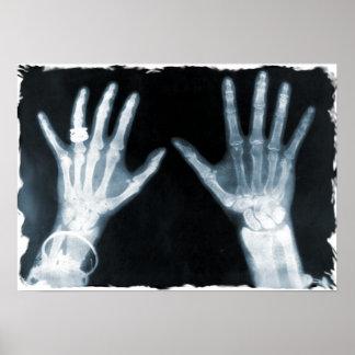 Mãos do raio X & jóia de esqueleto - azul Poster