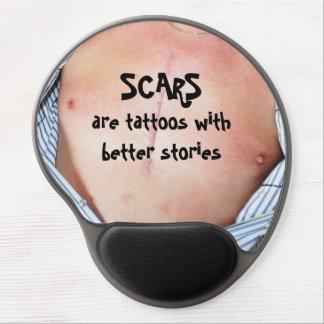 Mouse Pad De Gel As cicatrizes são tatuagens com melhores histórias