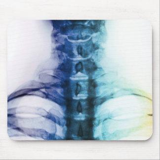 Mousepad Arte cervical do raio X de Digitas