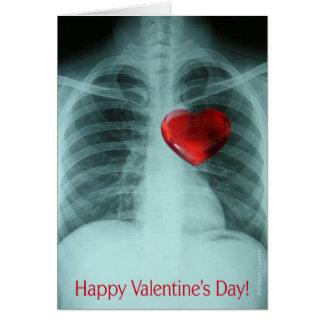O cartão dos namorados do raio X
