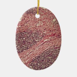 Ornamento De Cerâmica Células cancerosas do estômago sob o microscópio