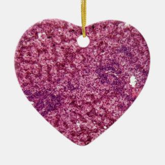 Ornamento De Cerâmica Pilhas de fígado humanas com cancer