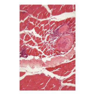 Papelaria Larvas dos spiralis do Trichinella no tecido do