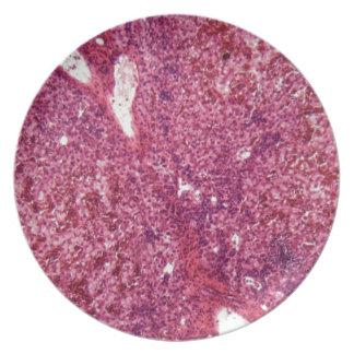 Prato De Festa Pilhas de fígado humanas com cancer sob o