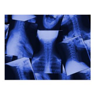 Radiografado - azul eletromagnético cartão postal