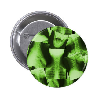 Radiografado - verde radioativo bóton redondo 5.08cm