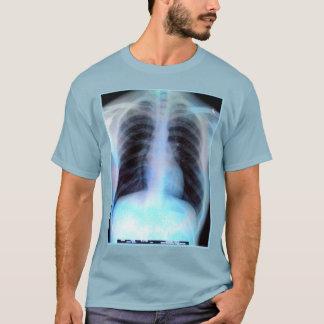 Radiologia da camisa do raio X de Ribcage