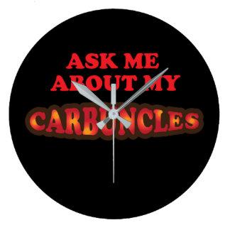 Relógio Grande Pergunte-me sobre meus Carbuncles