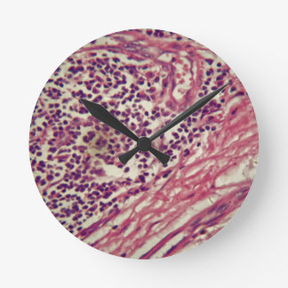 Relógio Redondo Células cancerosas do estômago sob o microscópio