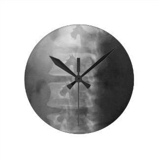 Relógio Redondo síndrome do cão do scottie