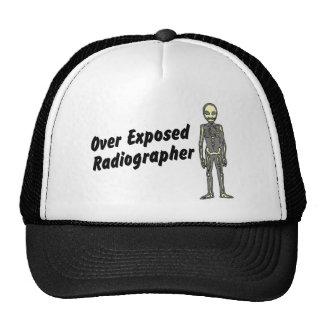 Sobre o técnico de radiologia expor bones