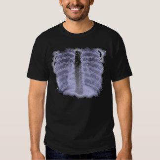 T-camisa do filme de raio X Tshirts