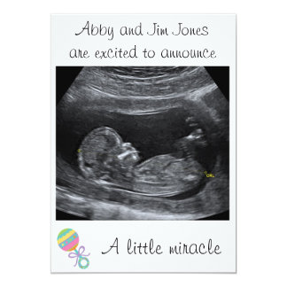 Um anúncio pequeno da gravidez do ~ do milagre convite 12.7 x 17.78cm