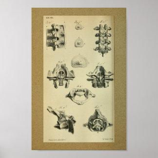 Vértebras 1850 espinais do impressão da anatomia