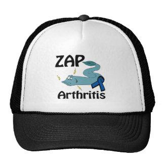 ZAP a artrite Bone