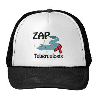 ZAP a tuberculose Boné